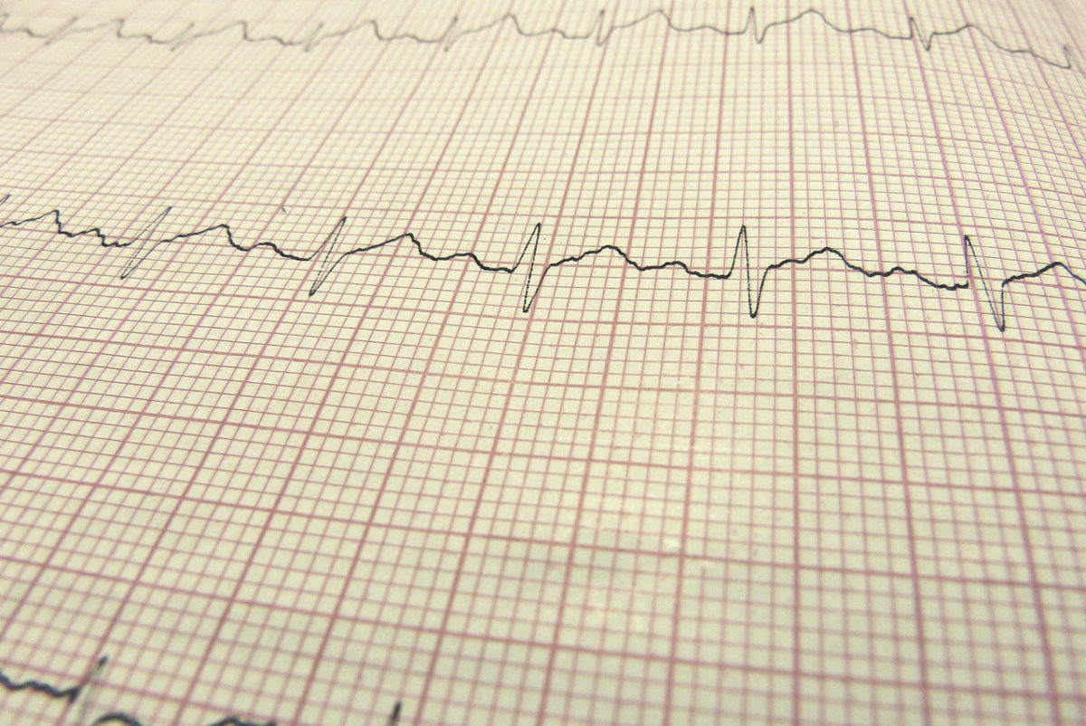 Goal: Lose Weight; Solution: Keep the Heart Rate Low